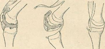 Схема   экономной   резекции   коленного   сустава