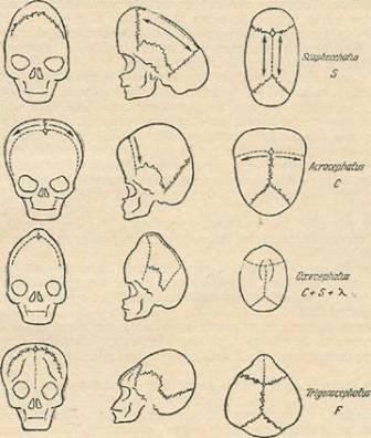 Схемы различных форм краниосиностоза