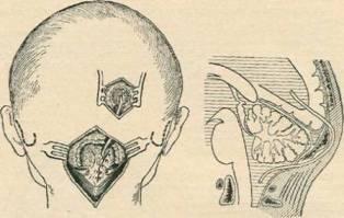 Соединение бокового желудочка