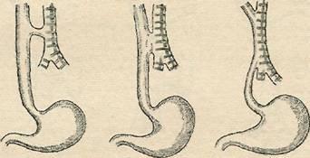 Виды пищеводно-трахеальиых свищей