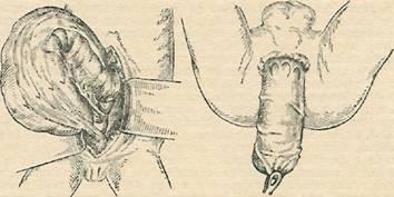 Схема операции при болезни Гиршпрунга