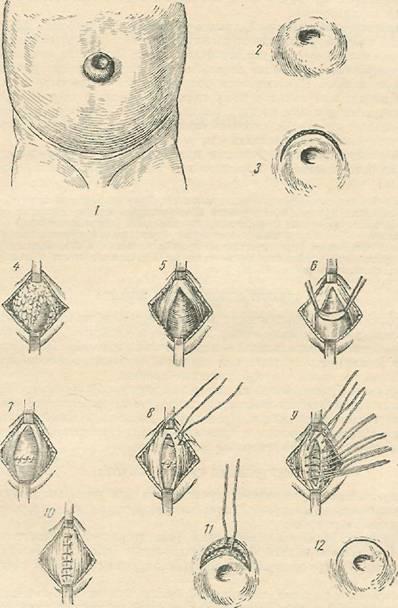 Операция пупочной грыжи